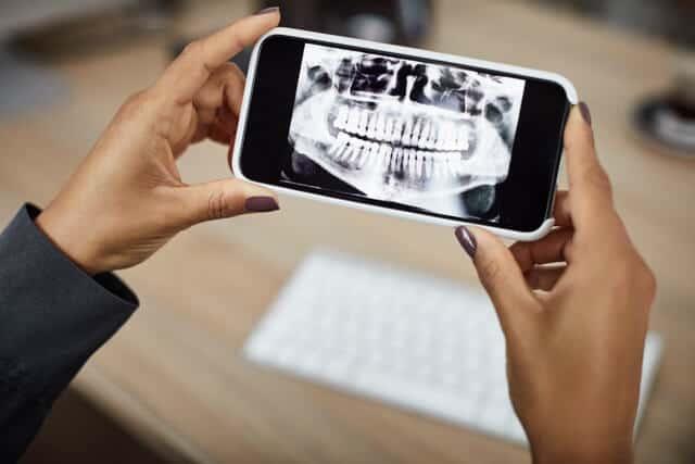 Parodontologie Zahnarzt Koblenz